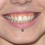 kerli-labret-piercing