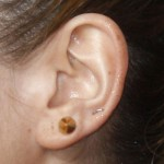 kesha-ear-piercing-upper-lobe